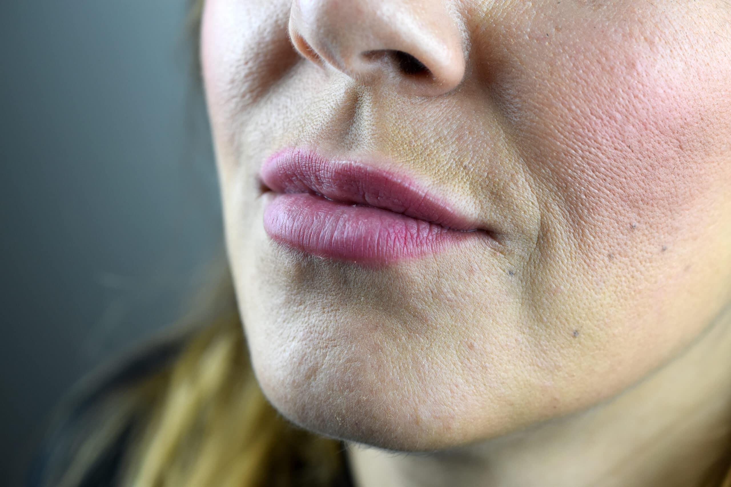 Ergebnis nach einem Jahr Secret Lips