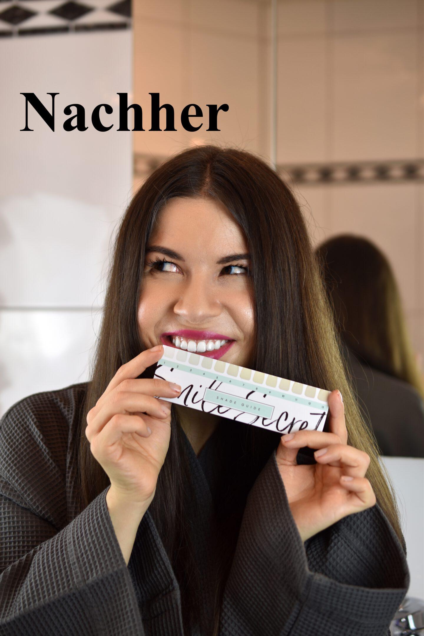 Nachher SmileSecret Phonebleaching X